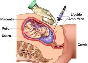 amniocentesis.jpg
