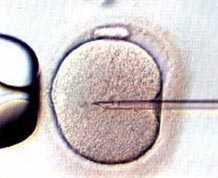 fertilizacion-vitro.jpg