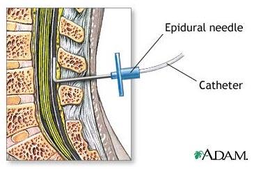 anestesia-epidural04.jpg