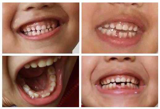 a que edad se caen los dientes de leche: