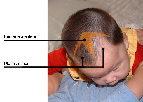 Una Bola En El Craneo De Un Bebe   grcom.info
